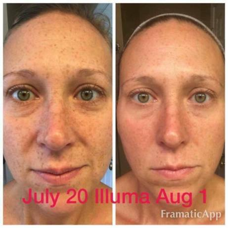 Before & After Smooth Essentials - Illumaboost