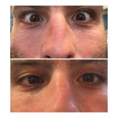 Before & After Eye Patches 1