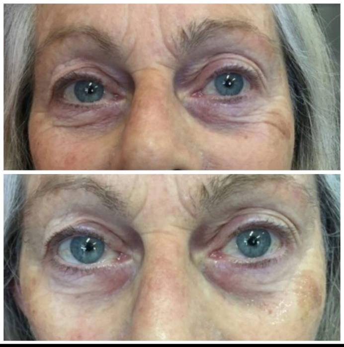 Before & After Eye Patches 2