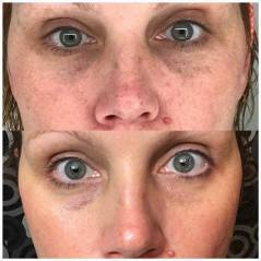Before & After Eye Serum 2