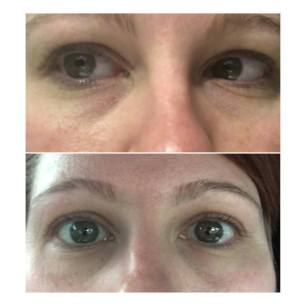 Before & After Eye Serum 3jpg