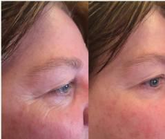 Before & After Eye Serum