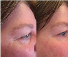 Before & After Eye Serum