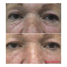 Before & After Smooth Essentials Eye Patch 3