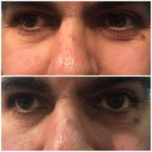 Before & After - Smooth Essentials Eye Serum 5